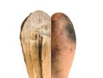 Linie na rozciętym drzewie i palcu ludzkim. Kliknięcie w obrazek spowoduje przejście do artykułu.